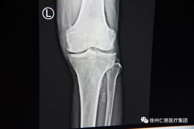 骨性关节炎要做关节置换?徐州仁慈医院微创截骨摆脱疼痛