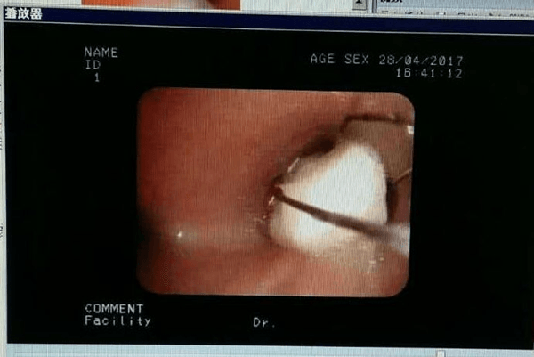 徐州儿童医院成功实施一例经支气管扩张镜异物取出术